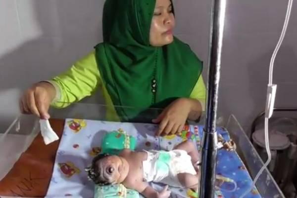 نوزاد-یک-چشم-در-اندونزی