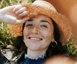 علل و عوامل و روش رفع لک آفتاب سوختگی