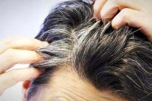 شوره سر میتواند علامت این بیماری خطرناک باشد