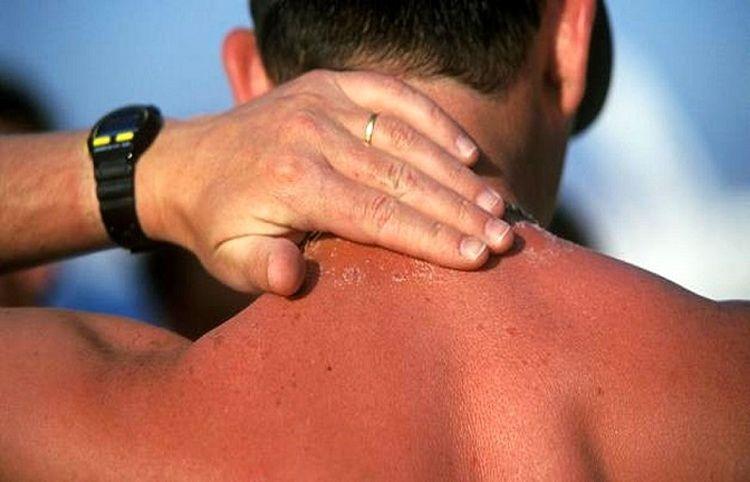 کدام قسمتهای بدن بیشتر آفتابسوخته میشوند؟