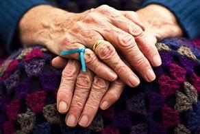 درمان آلزایمر با کمک یک داروی شیمیدرمانی!