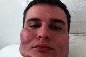 فاجعه که پزشک زیبایی روی صورت بیمارانش به بار آورده بود!+ عکس