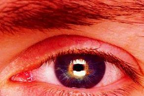 آیا چشم زخم واقعیت دارد یا خرافه است؟