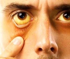 ابتلا به علایم چشمی در بیماران تیروئیدی