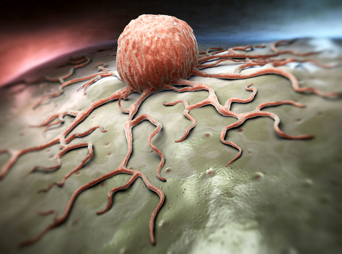 آیا مبتلایان به سرطان مشکلی در تزریق واکسن کرونا دارند؟