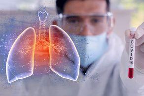بیماران کرونایی با درگیری چند درصدی ریه در بیمارستان بستری می شوند؟