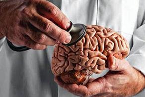تاثیرات کرونا مشابه آلزایمر بر مغز است